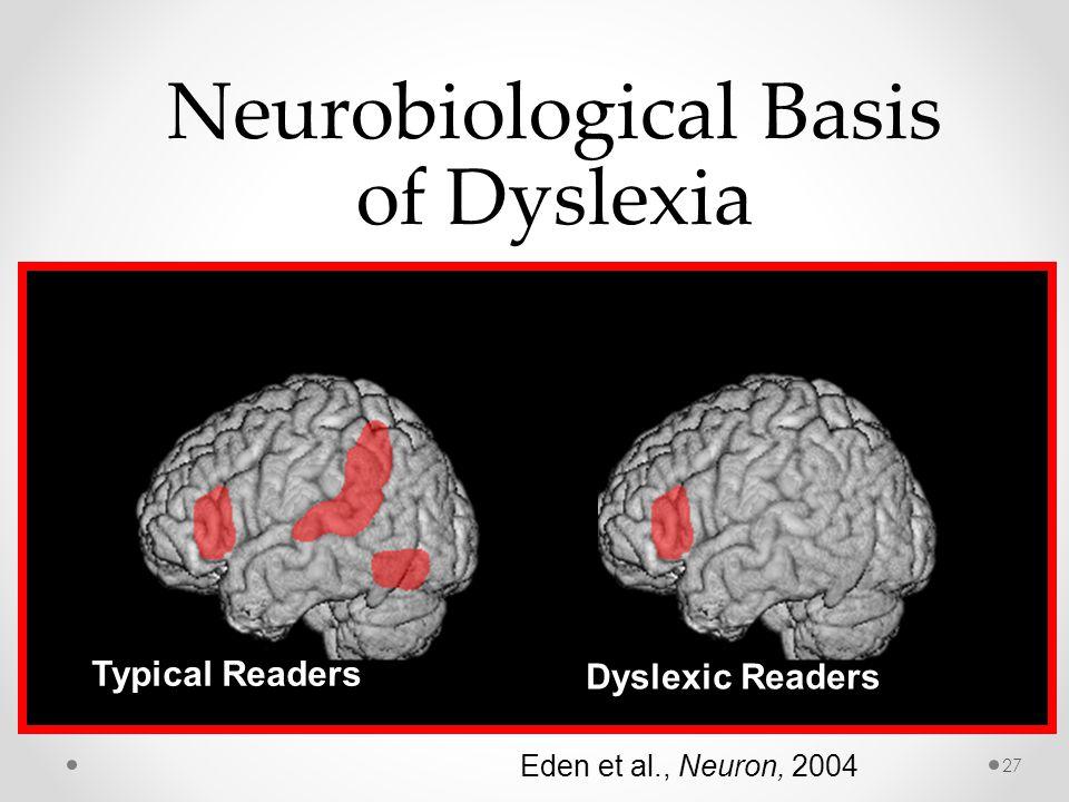 Typical Readers Dyslexic Readers Neurobiological Basis of Dyslexia Eden et al., Neuron, 2004 27