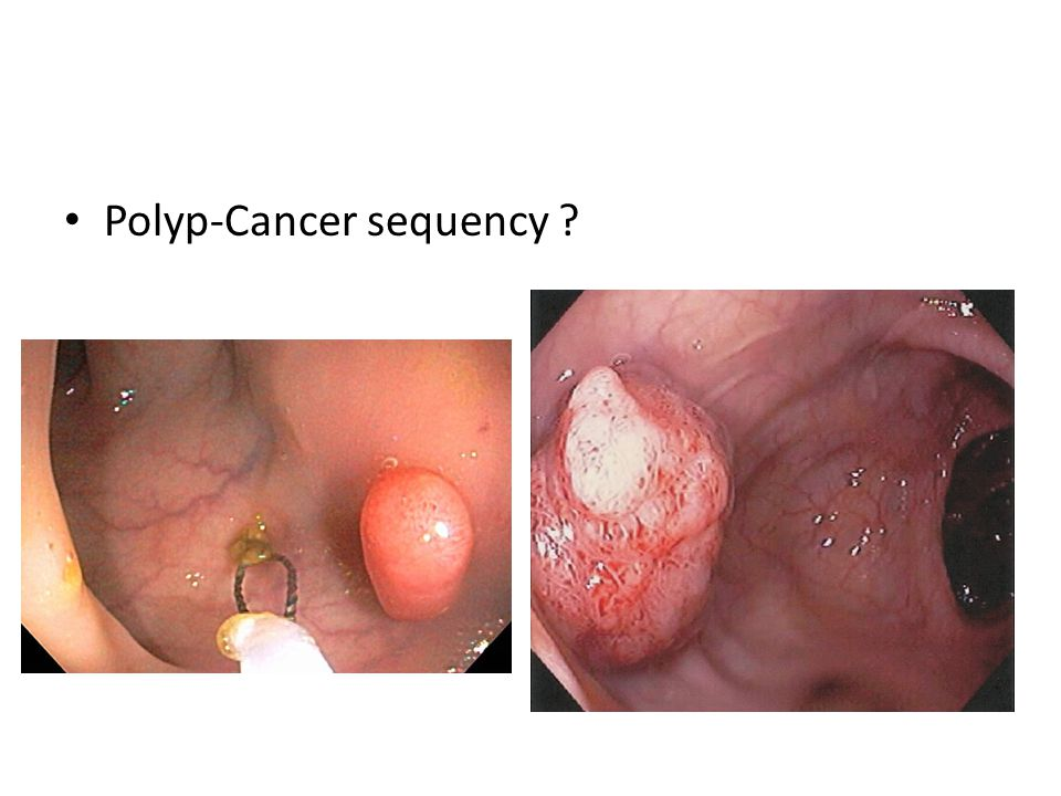 Polyp-Cancer sequency