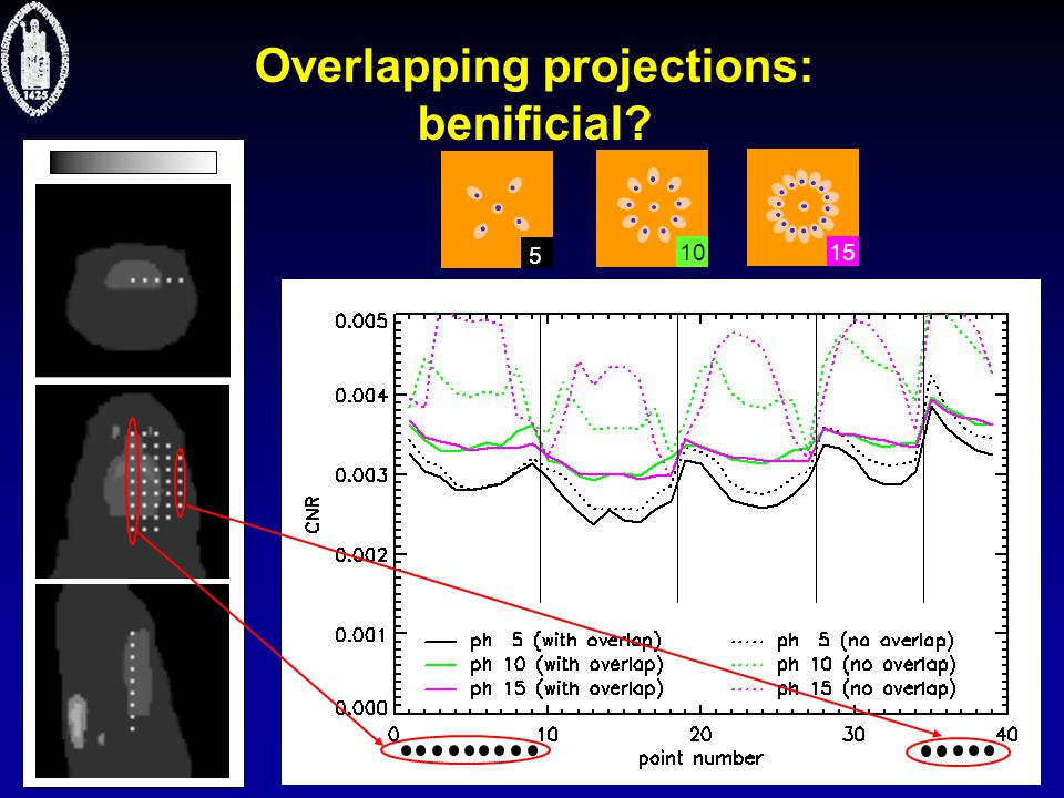  Nuclear Medicine Overlapping projections: benificial? 10 5 15