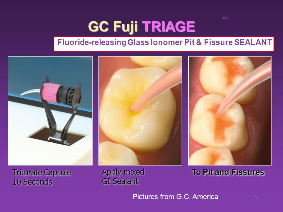 71 GC Fuji TRIAGE ™ Fluoride-releasing Glass Ionomer Pit & Fissure SEALANT Triturate Capsule 10 Seconds Apply mixed GI Sealant Pit and Fissures To Pit and Fissures Pictures from G.C.