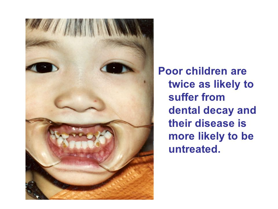 Poor children are twice as likely to suffer from dental decay and their disease is more likely to be untreated.