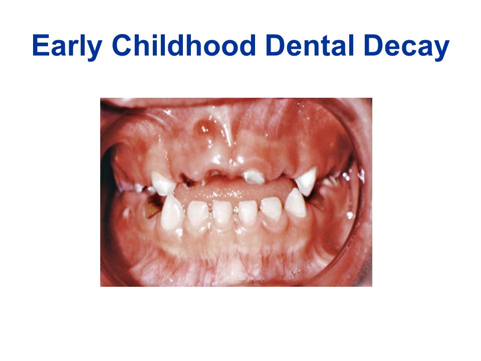Early Childhood Dental Decay