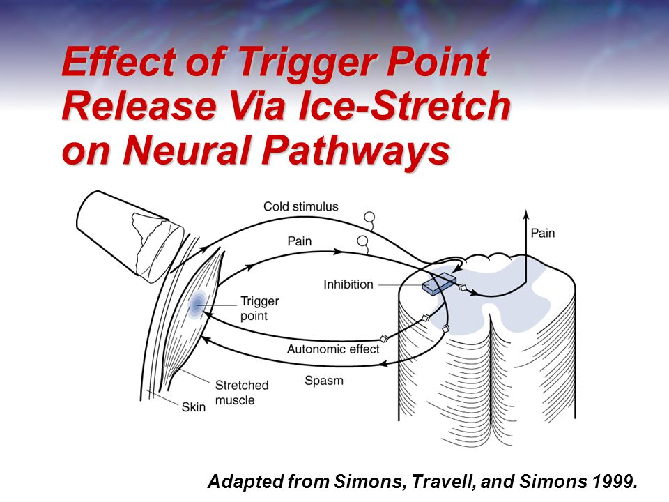 Effect of Trigger Point Release Via Ice-Stretch on Neural Pathways Adapted from Simons, Travell, and Simons 1999.