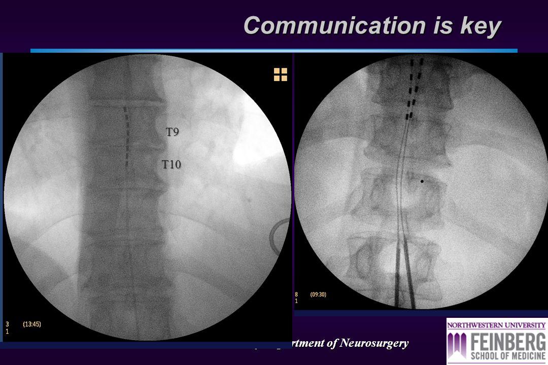 Northwestern University Department of Neurosurgery Guess the level!