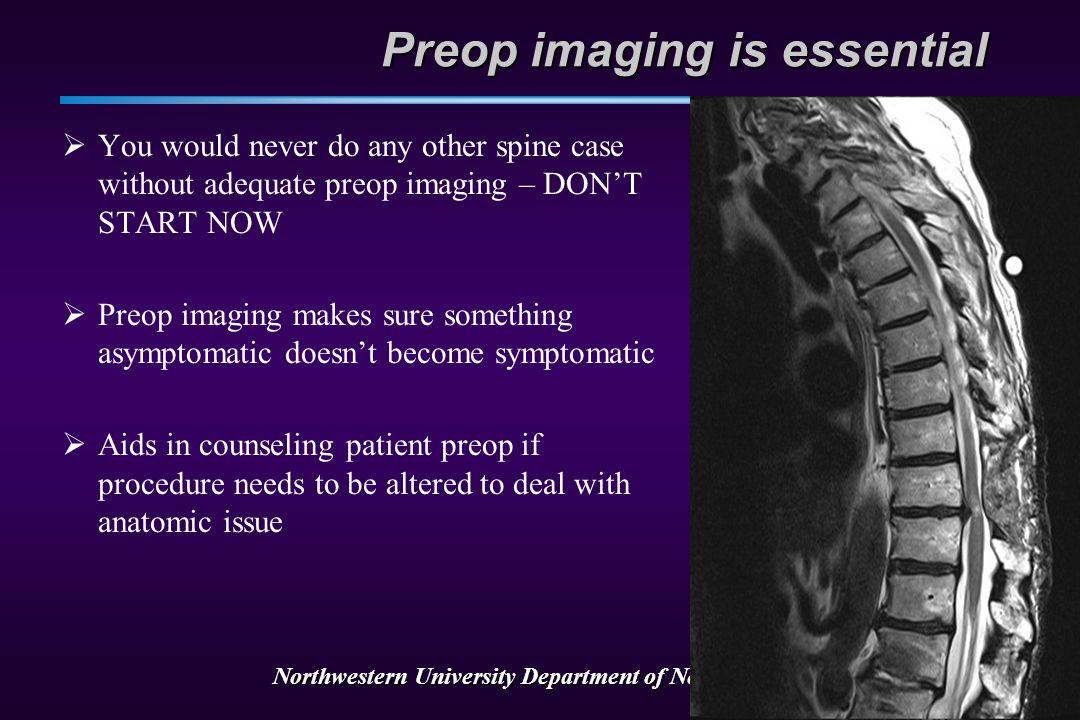 Northwestern University Department of Neurosurgery Communication is key T9 T10