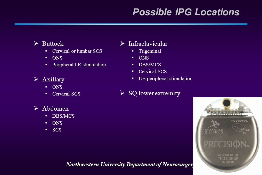 Northwestern University Department of Neurosurgery IPG Considerations  Location location location  Patient comfort  Cosmesis  Ease of remote inter