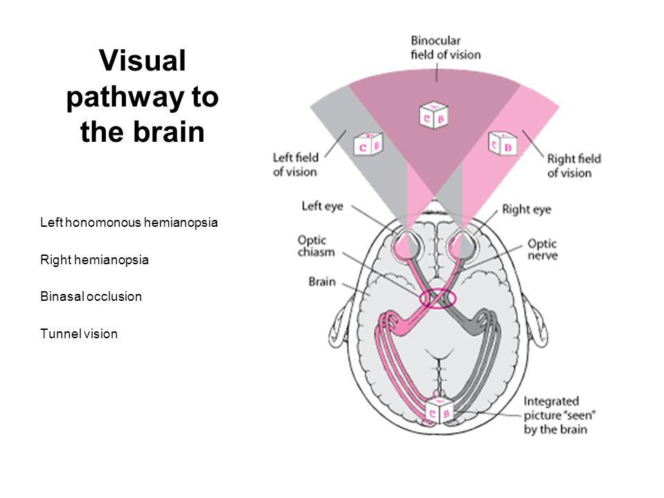 Visual pathway to the brain Left honomonous hemianopsia Right hemianopsia Binasal occlusion Tunnel vision