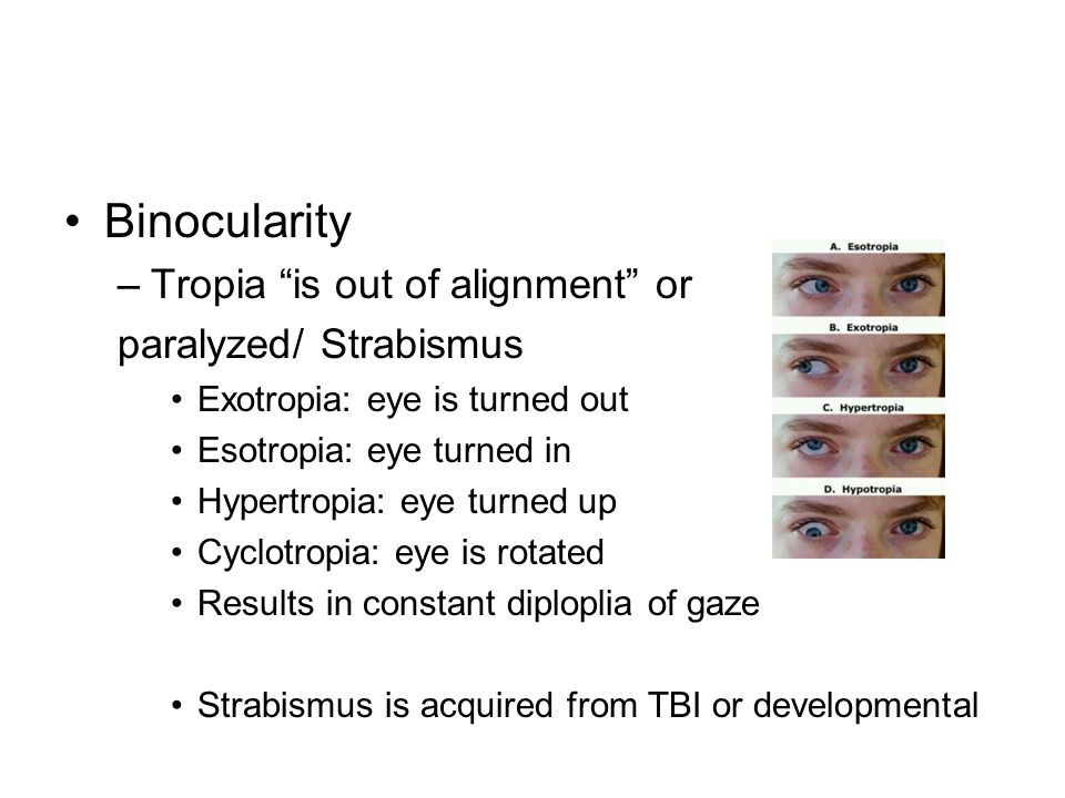 Binocularity –Tropia is out of alignment or paralyzed/ Strabismus Exotropia: eye is turned out Esotropia: eye turned in Hypertropia: eye turned up Cyclotropia: eye is rotated Results in constant diploplia of gaze Strabismus is acquired from TBI or developmental