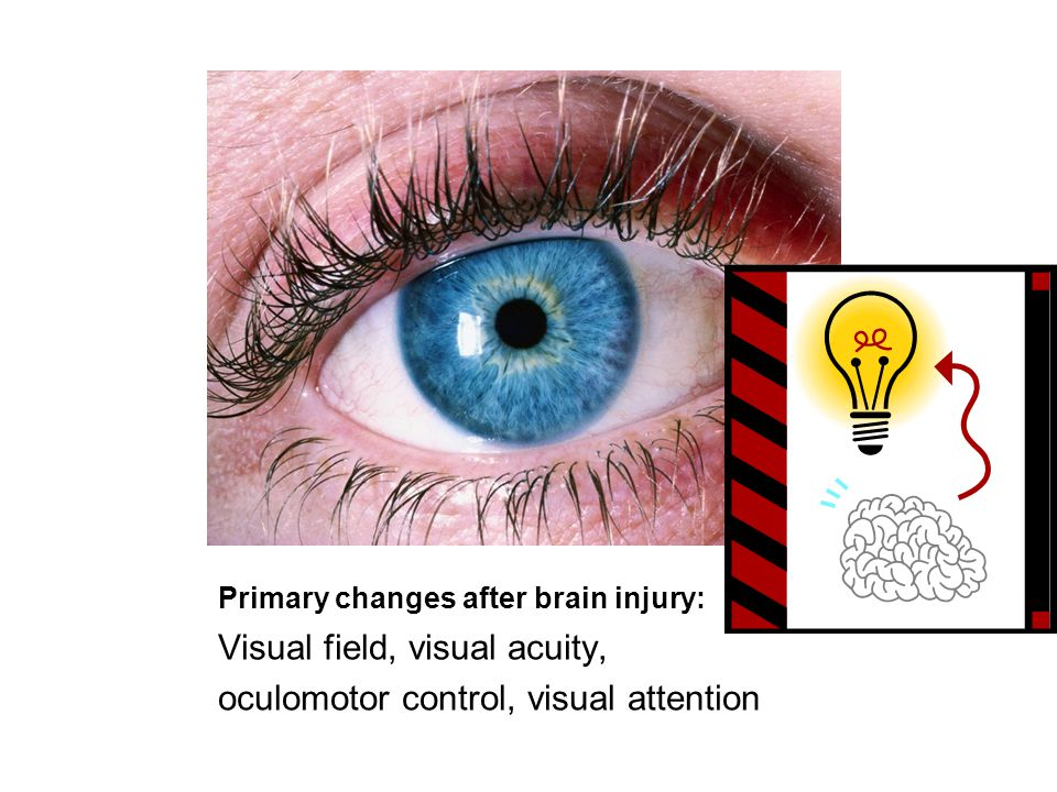 Primary changes after brain injury: Visual field, visual acuity, oculomotor control, visual attention