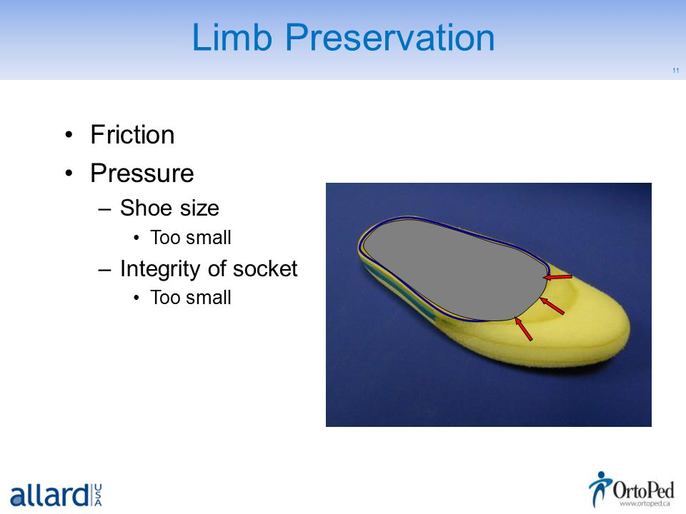 11 Limb Preservation Friction Pressure –Shoe size Too small –Integrity of socket Too small