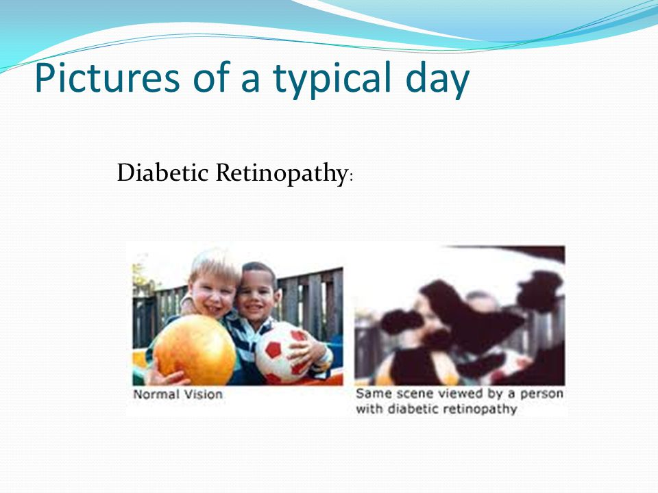 Pictures of a typical day Diabetic Retinopathy :