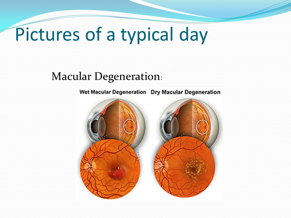 Pictures of a typical day Macular Degeneration :