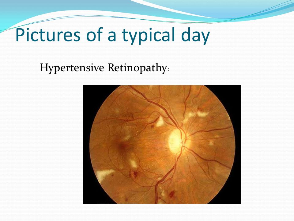 Pictures of a typical day Hypertensive Retinopathy :