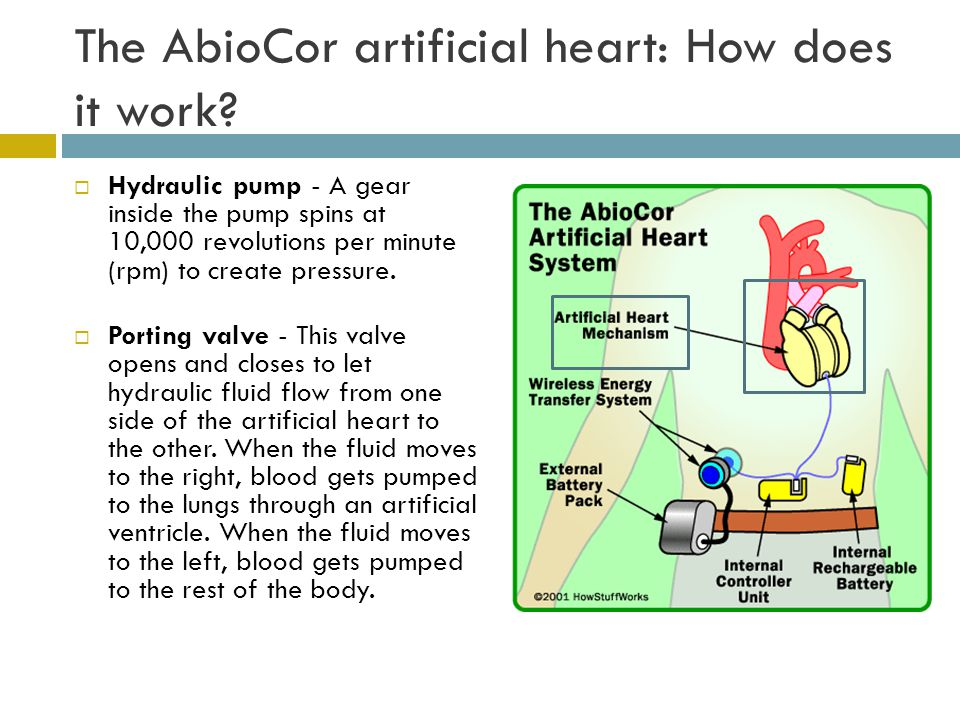 The AbioCor artificial heart: How does it work.