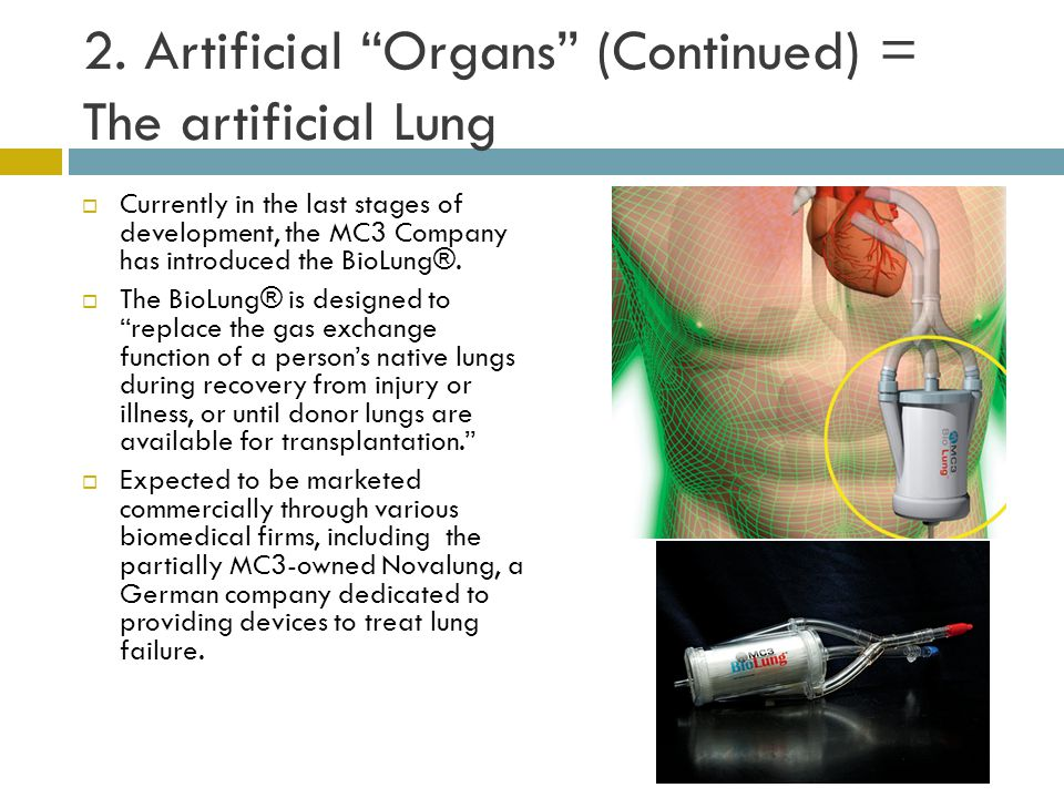 """2. Artificial """"Organs"""" (Continued) = The artificial Lung  Currently in the last stages of development, the MC3 Company has introduced the BioLung®. """