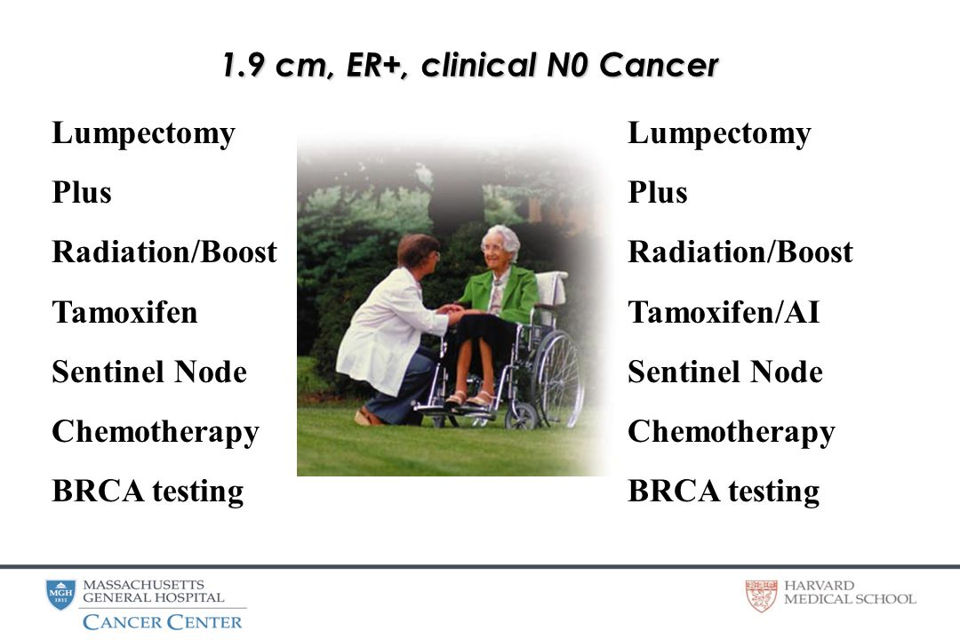 1.9 cm, ER+, clinical N0 Cancer Lumpectomy Plus Radiation/Boost Tamoxifen Sentinel Node Chemotherapy BRCA testing Lumpectomy Plus Radiation/Boost Tamoxifen/AI Sentinel Node Chemotherapy BRCA testing