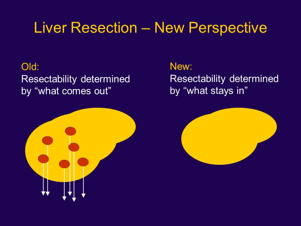 "Liver Resection – New Perspective Old: Resectability determined by ""what comes out"" New: Resectability determined by ""what stays in"""