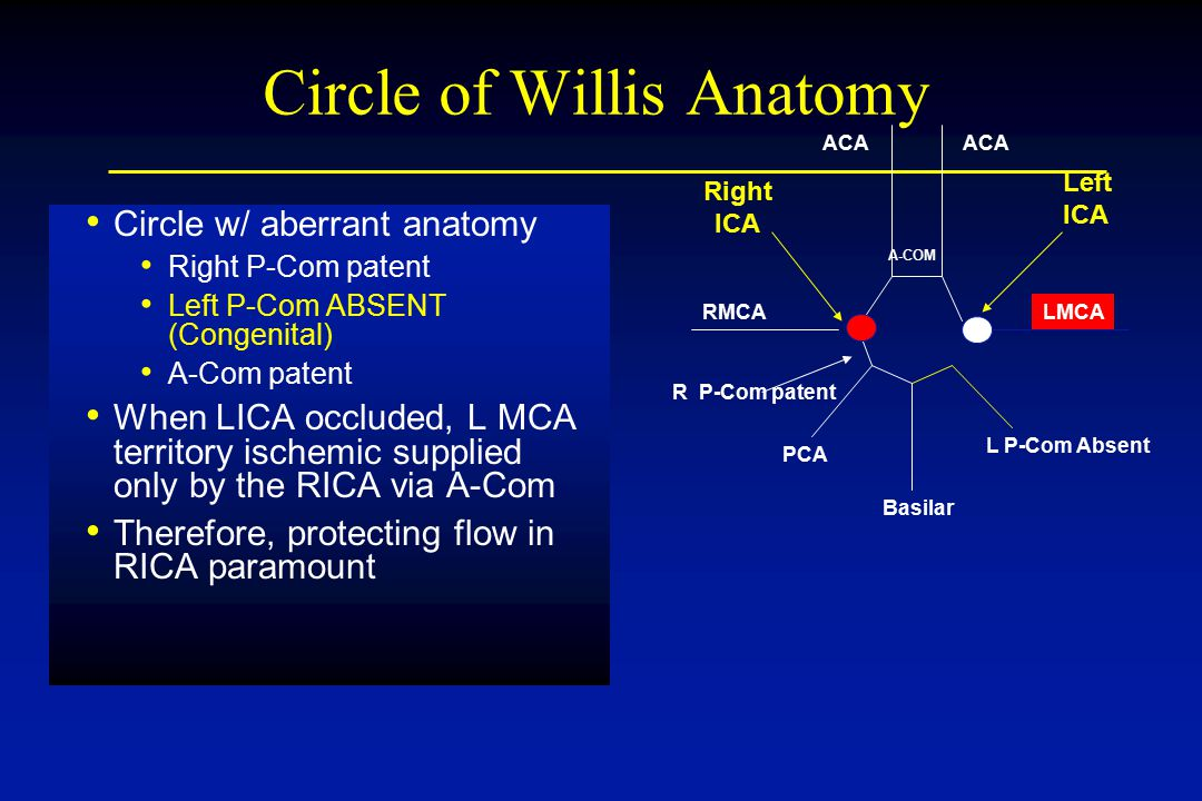 Circle of Willis Anatomy Circle w/ aberrant anatomy Right P-Com patent Left P-Com ABSENT (Congenital) A-Com patent When LICA occluded, L MCA territory ischemic supplied only by the RICA via A-Com Therefore, protecting flow in RICA paramount RMCA R P-Com patent A-COM ACA Basilar PCA L P-Com Absent LMCA Right ICA Left ICA