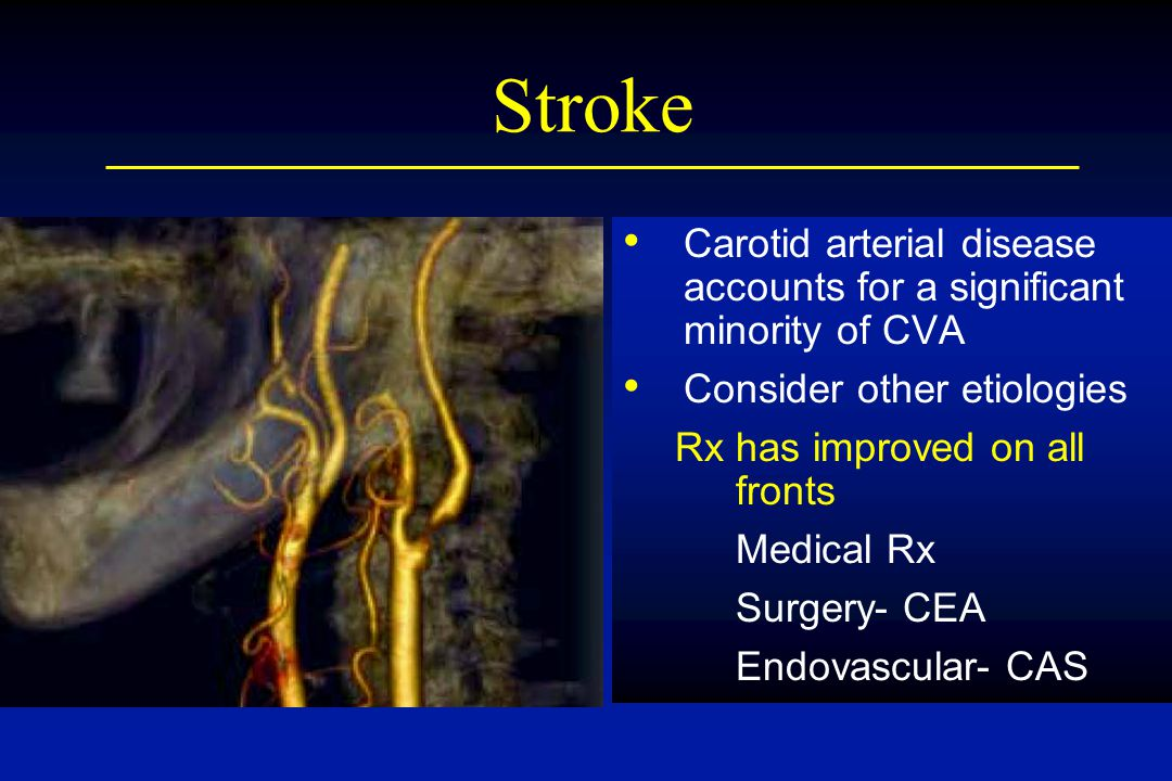 Stroke Carotid arterial disease accounts for a significant minority of CVA Consider other etiologies Rx has improved on all fronts Medical Rx Surgery- CEA Endovascular- CAS