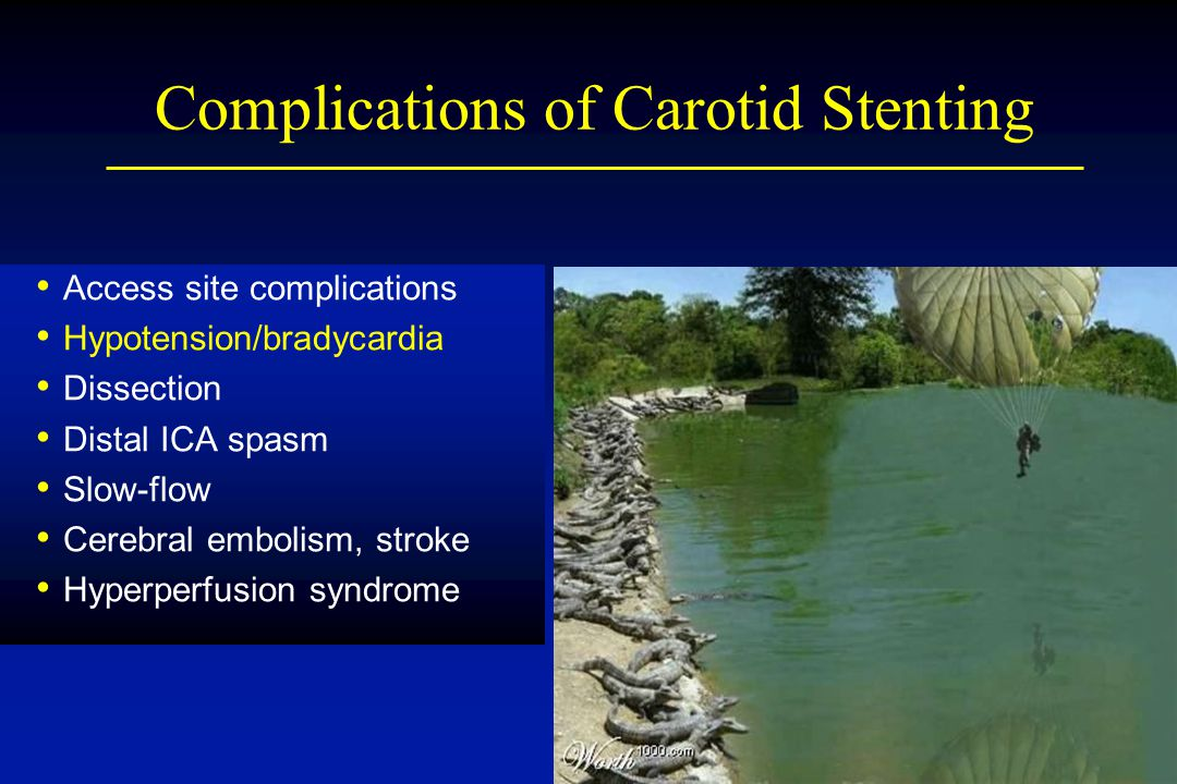 Complications of Carotid Stenting Access site complications Hypotension/bradycardia Dissection Distal ICA spasm Slow-flow Cerebral embolism, stroke Hy