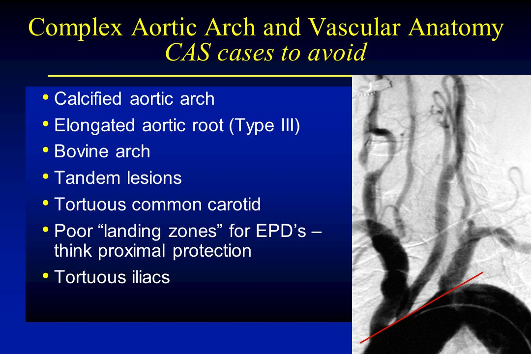 Calcified aortic arch Elongated aortic root (Type III) Bovine arch Tandem lesions Tortuous common carotid Poor landing zones for EPD's – think proximal protection Tortuous iliacs Complex Aortic Arch and Vascular Anatomy CAS cases to avoid