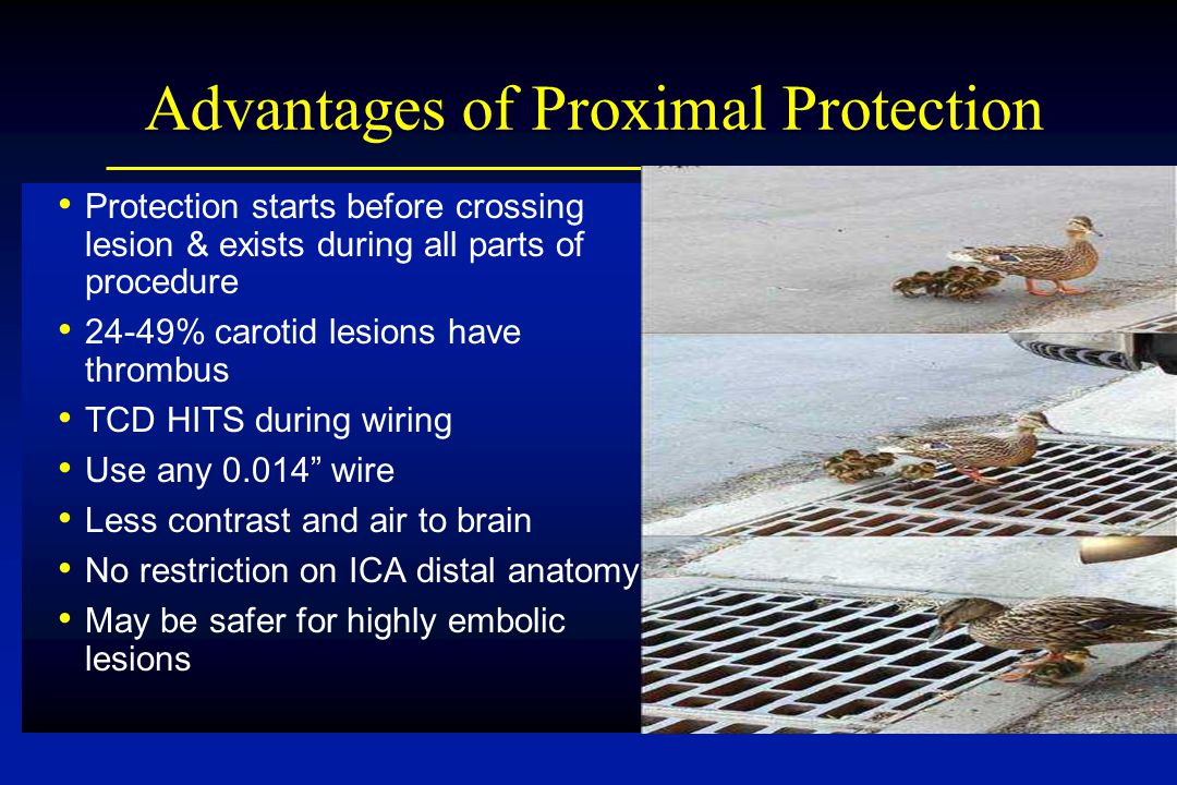 Advantages of Proximal Protection Protection starts before crossing lesion & exists during all parts of procedure 24-49% carotid lesions have thrombus TCD HITS during wiring Use any 0.014 wire Less contrast and air to brain No restriction on ICA distal anatomy May be safer for highly embolic lesions