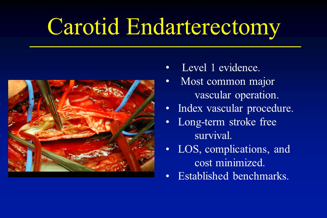 Carotid Endarterectomy Level 1 evidence. Most common major vascular operation. Index vascular procedure. Long-term stroke free survival. LOS, complica