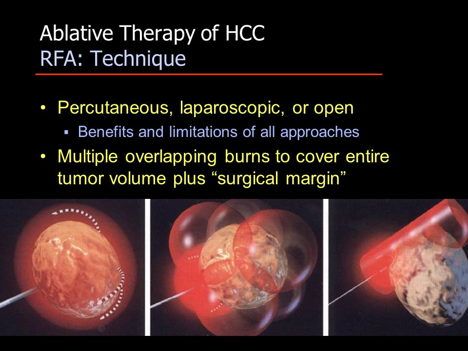 Ablative Therapy of HCC RFA: Technique Percutaneous, laparoscopic, or open  Benefits and limitations of all approaches Multiple overlapping burns to cover entire tumor volume plus surgical margin