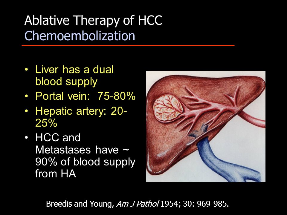 Ablative Therapy of HCC Chemoembolization Liver has a dual blood supply Portal vein: 75-80% Hepatic artery: 20- 25% HCC and Metastases have ~ 90% of b