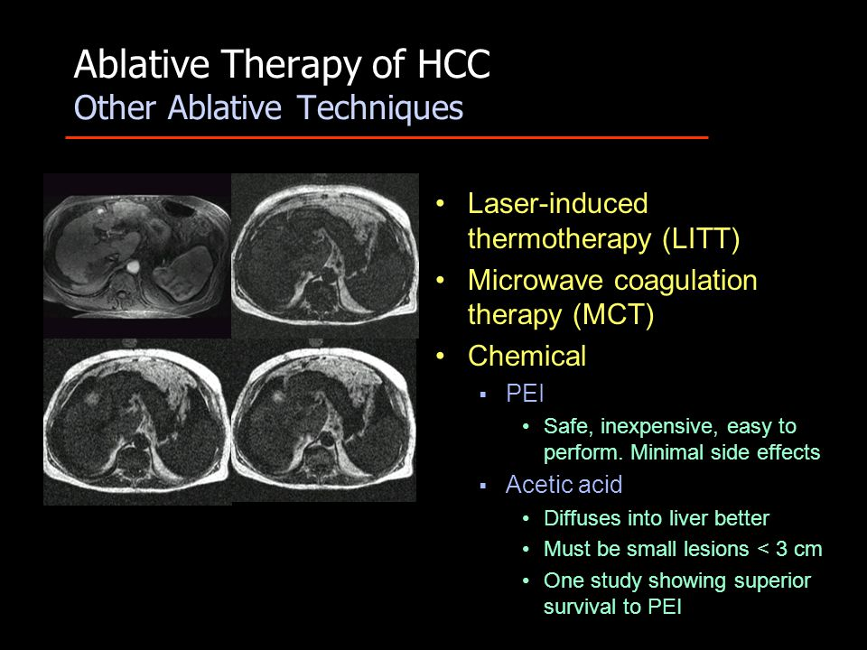 Ablative Therapy of HCC Other Ablative Techniques Laser-induced thermotherapy (LITT) Microwave coagulation therapy (MCT) Chemical  PEI Safe, inexpensive, easy to perform.