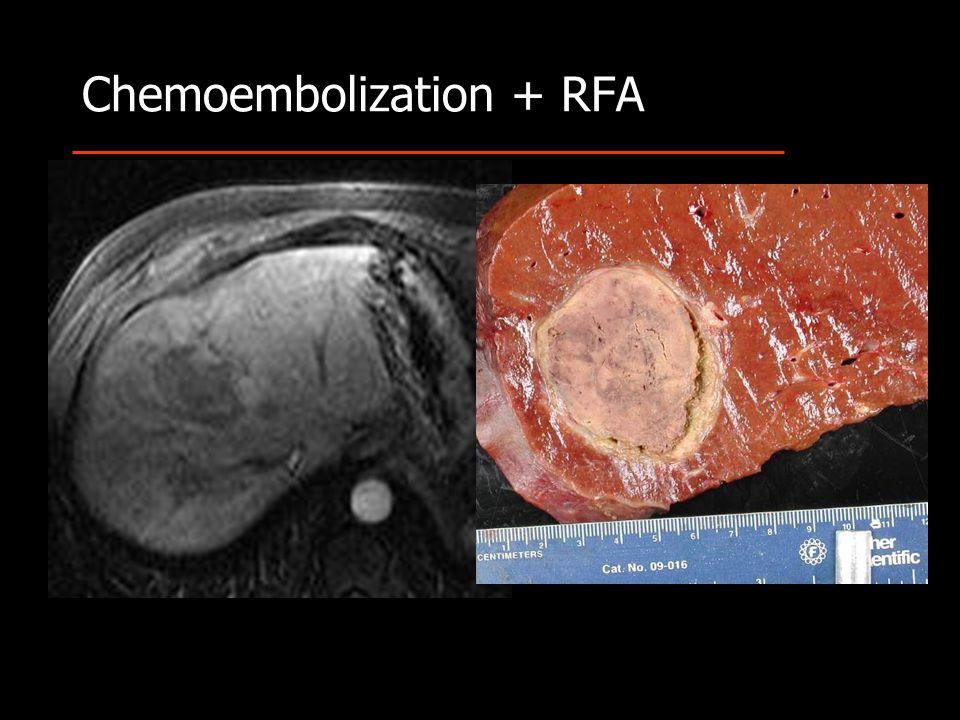 Chemoembolization + RFA
