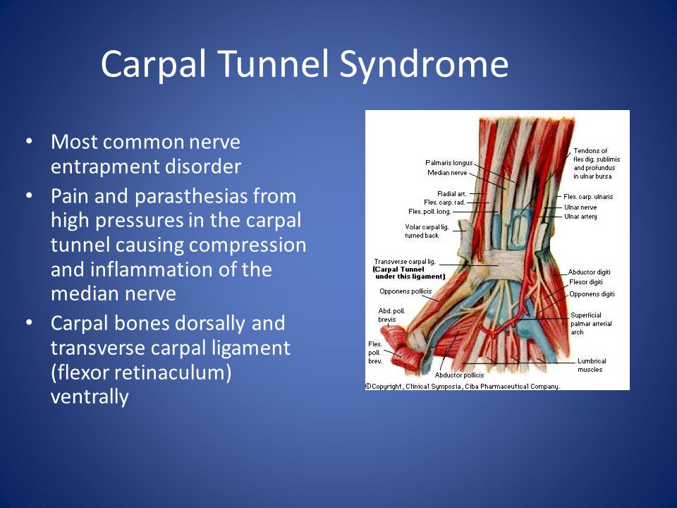 Carpal Tunnel Syndrome Most common nerve entrapment disorder Pain and parasthesias from high pressures in the carpal tunnel causing compression and in