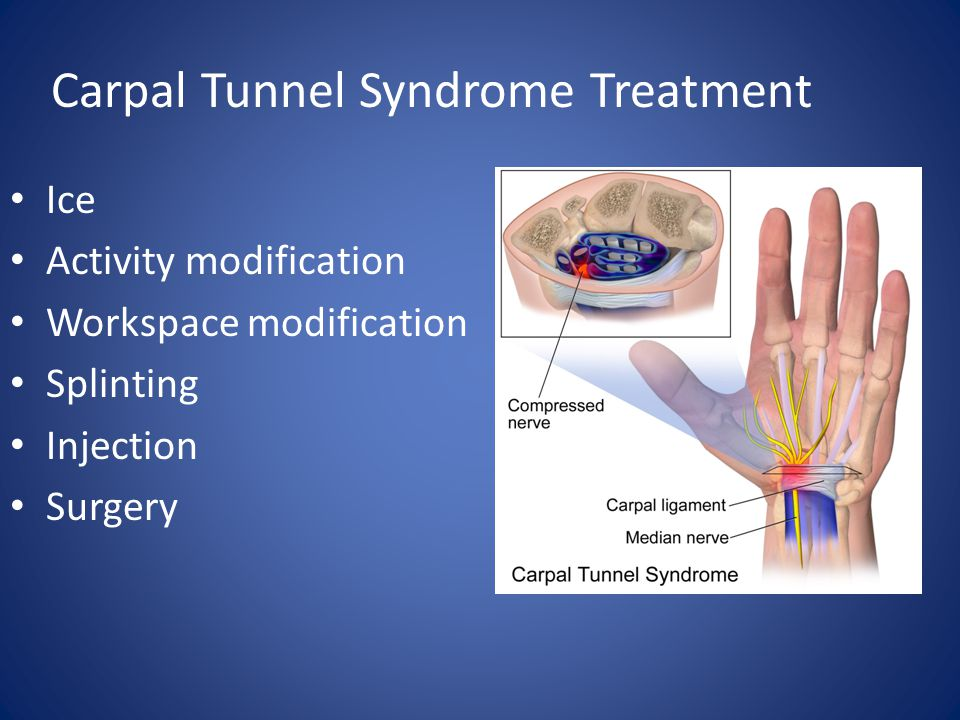 Carpal Tunnel Syndrome Treatment Ice Activity modification Workspace modification Splinting Injection Surgery