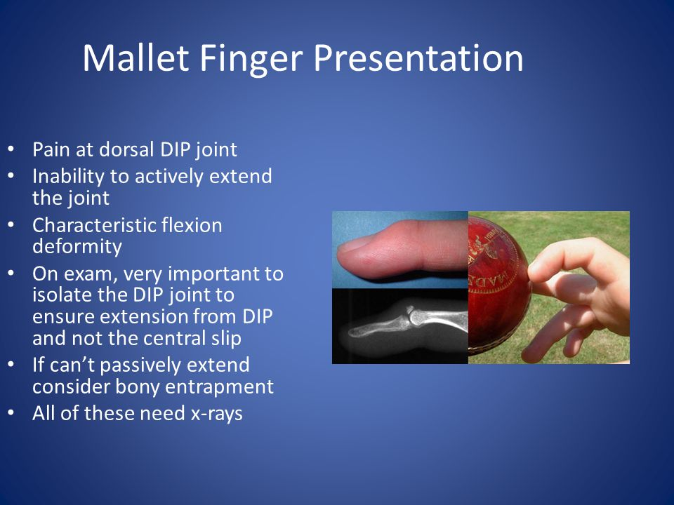 Mallet Finger Presentation Pain at dorsal DIP joint Inability to actively extend the joint Characteristic flexion deformity On exam, very important to