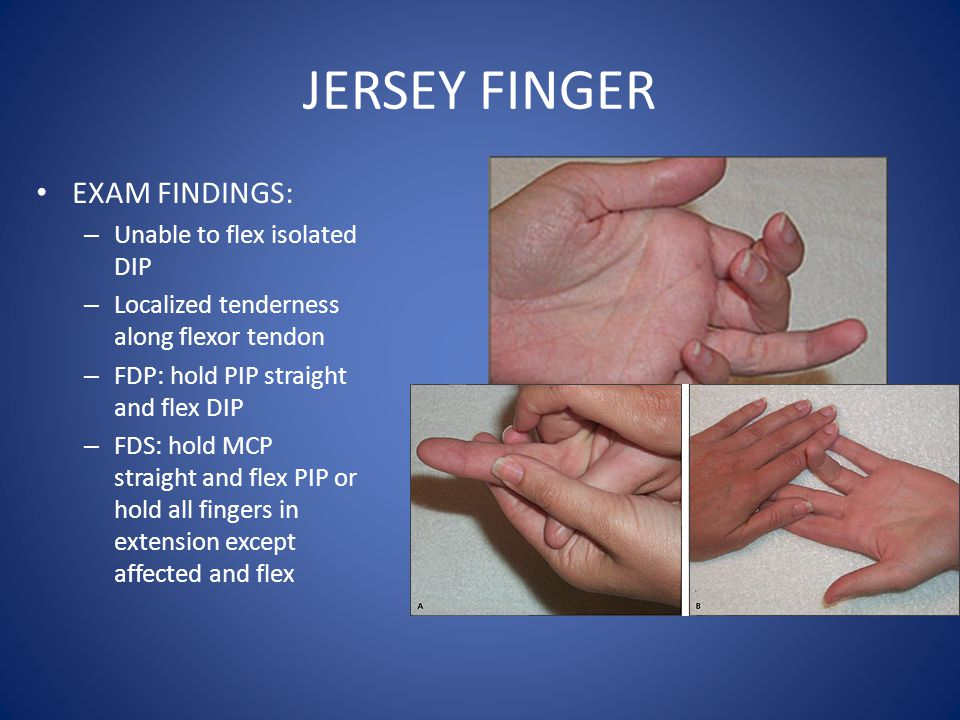 JERSEY FINGER EXAM FINDINGS: – Unable to flex isolated DIP – Localized tenderness along flexor tendon – FDP: hold PIP straight and flex DIP – FDS: hol