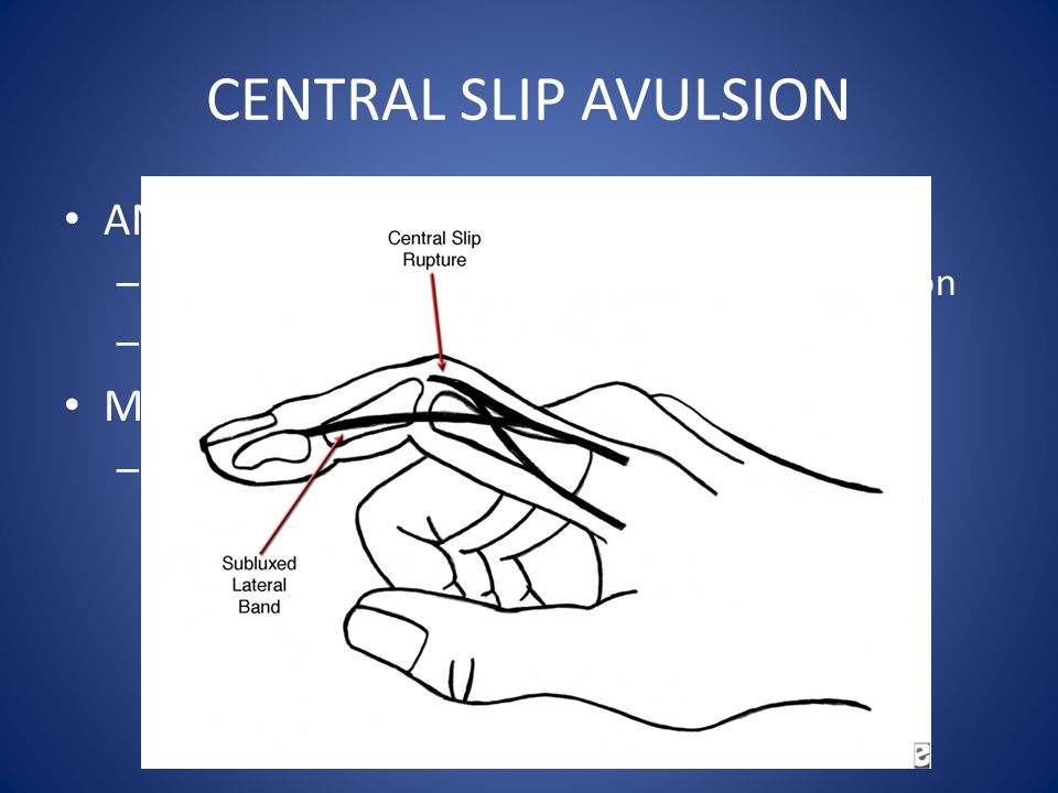 CENTRAL SLIP AVULSION ANATOMY – Extensor digitorum communis tendon disruption – Lateral bands migrate in volar direction MECHANISM: – Volar-directed f
