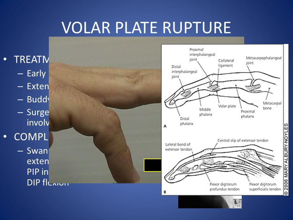 VOLAR PLATE RUPTURE TREATMENT: – Early mobilization – Extension block splint – Buddy tape – Surgery if >30% joint involved COMPLICATIONS: – Swan neck