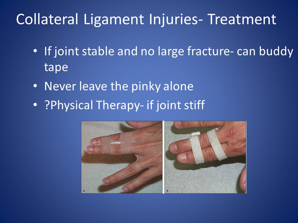 Collateral Ligament Injuries- Treatment If joint stable and no large fracture- can buddy tape Never leave the pinky alone ?Physical Therapy- if joint