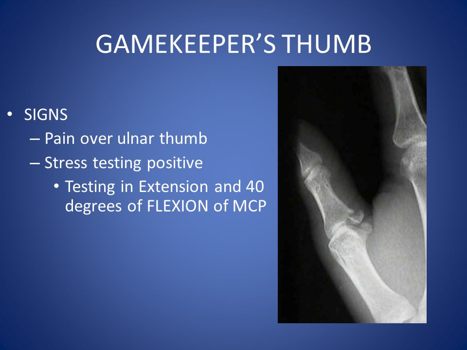 GAMEKEEPER'S THUMB SIGNS – Pain over ulnar thumb – Stress testing positive Testing in Extension and 40 degrees of FLEXION of MCP