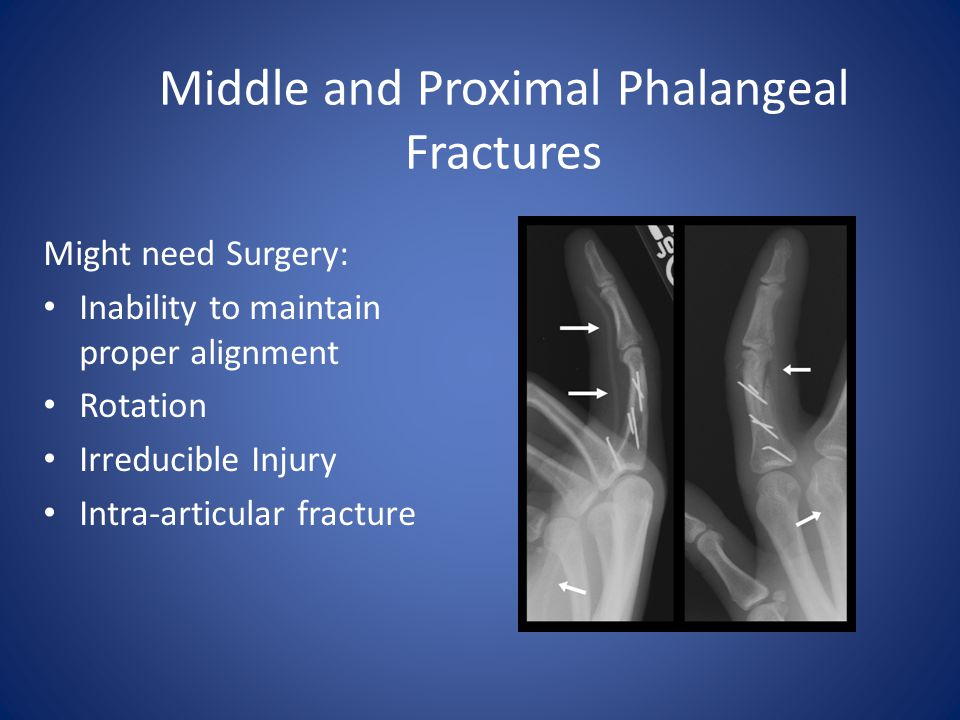 Middle and Proximal Phalangeal Fractures Might need Surgery: Inability to maintain proper alignment Rotation Irreducible Injury Intra-articular fractu