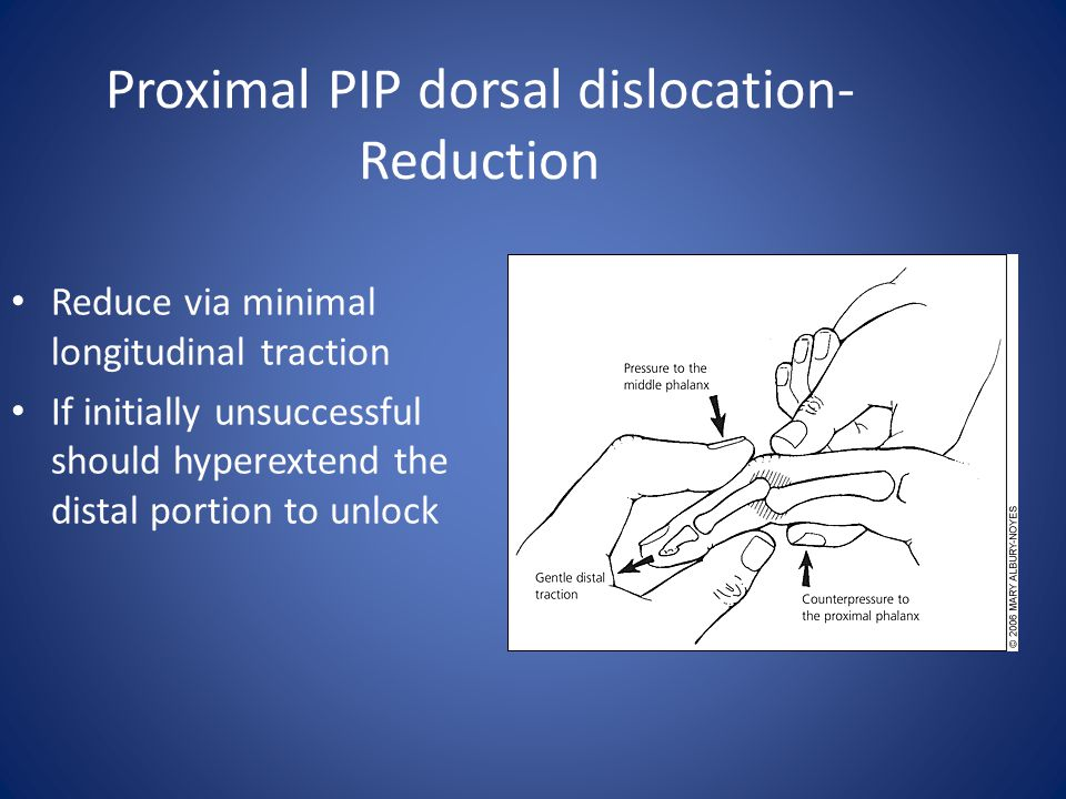 Proximal PIP dorsal dislocation- Reduction Reduce via minimal longitudinal traction If initially unsuccessful should hyperextend the distal portion to