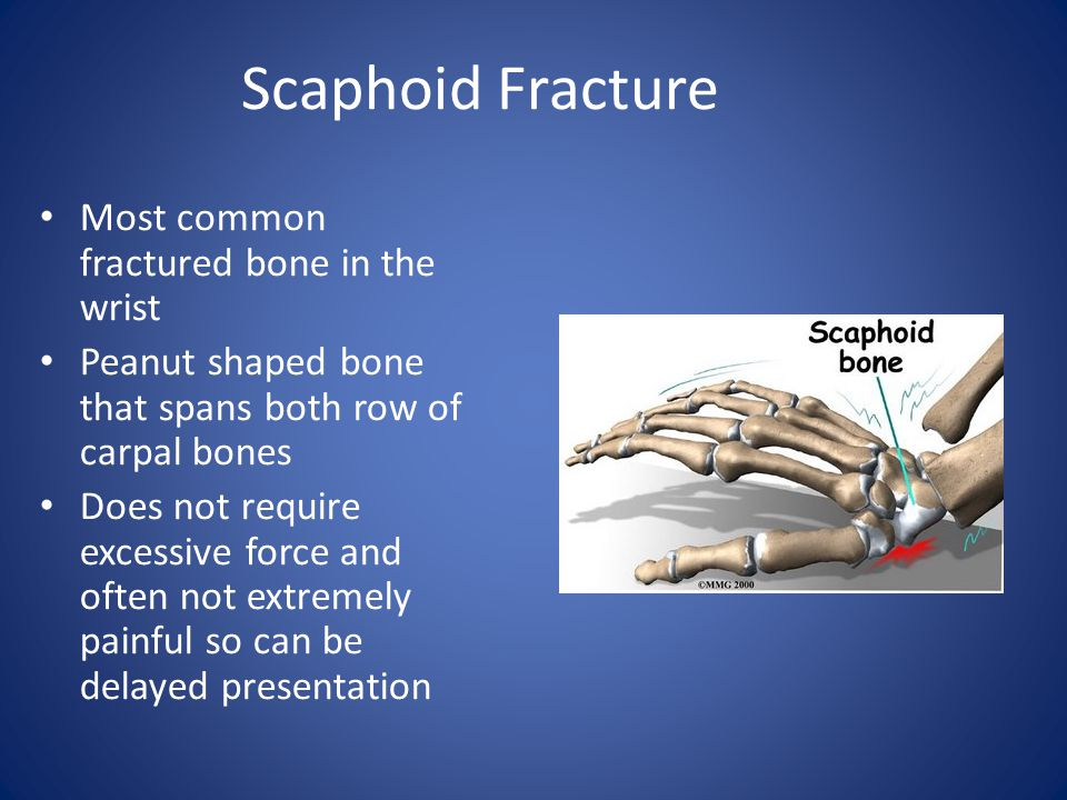 Scaphoid Fracture Most common fractured bone in the wrist Peanut shaped bone that spans both row of carpal bones Does not require excessive force and