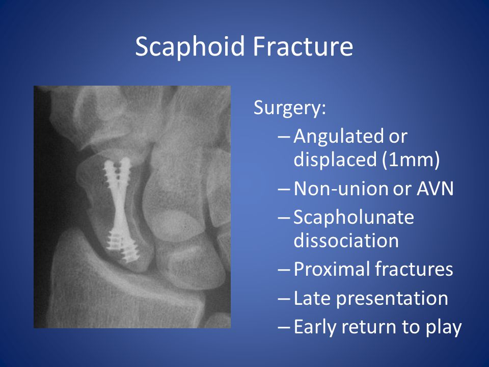Scaphoid Fracture Surgery: – Angulated or displaced (1mm) – Non-union or AVN – Scapholunate dissociation – Proximal fractures – Late presentation – Ea