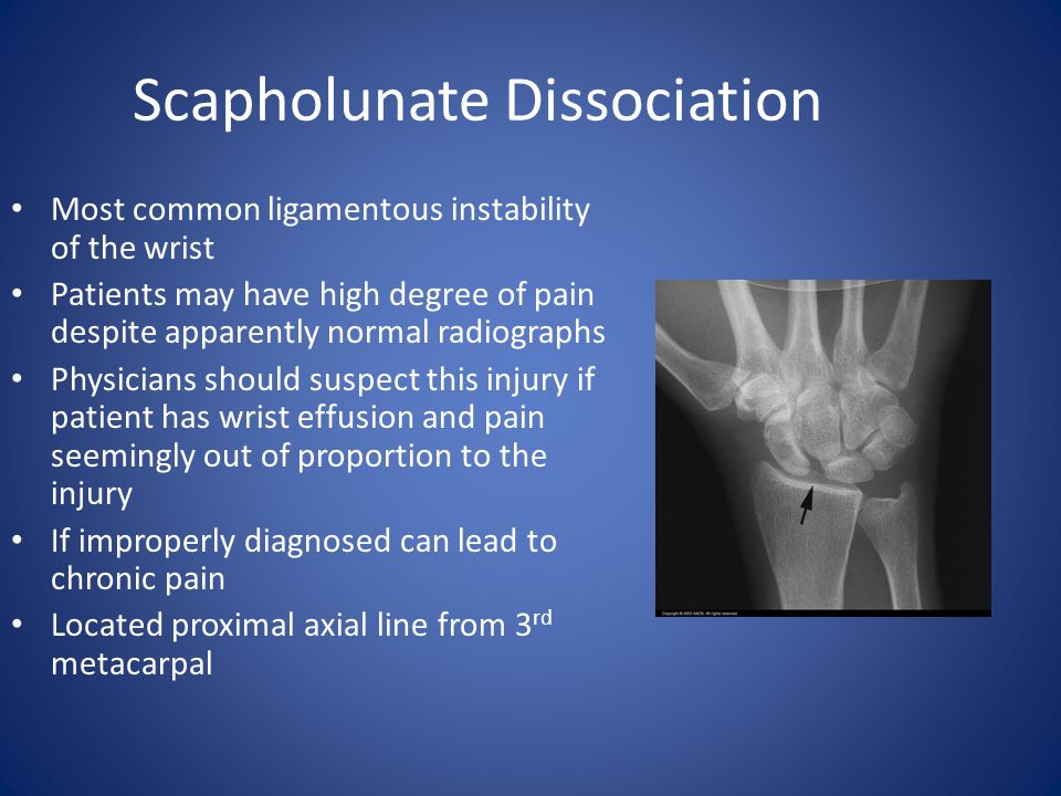 Scapholunate Dissociation Most common ligamentous instability of the wrist Patients may have high degree of pain despite apparently normal radiographs