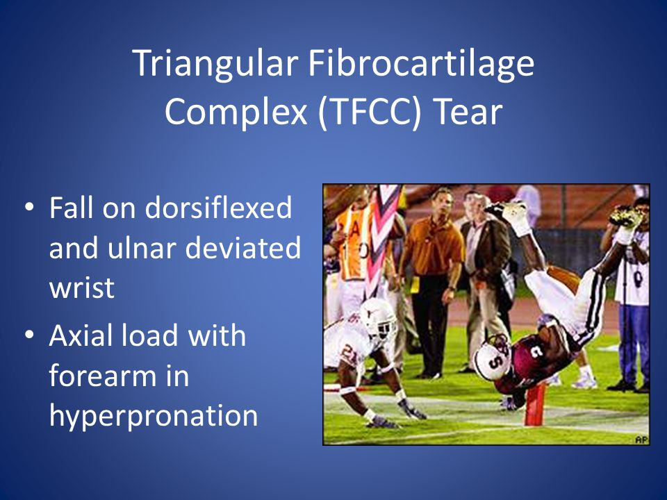 Triangular Fibrocartilage Complex (TFCC) Tear Fall on dorsiflexed and ulnar deviated wrist Axial load with forearm in hyperpronation