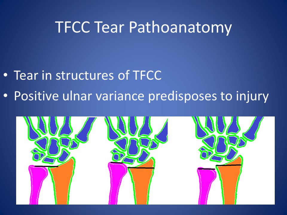 TFCC Tear Pathoanatomy Tear in structures of TFCC Positive ulnar variance predisposes to injury