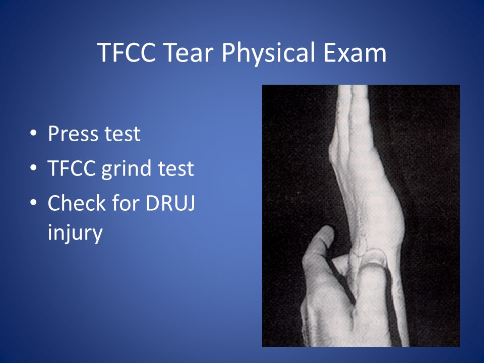 TFCC Tear Physical Exam Press test TFCC grind test Check for DRUJ injury