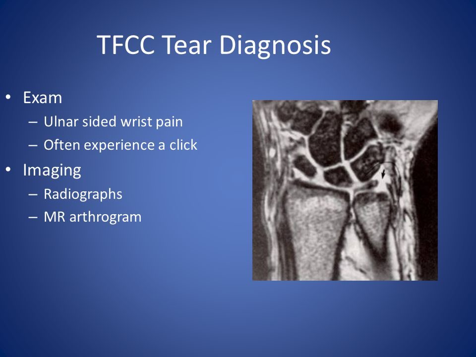 TFCC Tear Diagnosis Exam – Ulnar sided wrist pain – Often experience a click Imaging – Radiographs – MR arthrogram