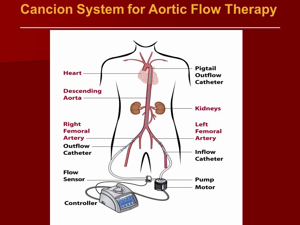 Cancion System for Aortic Flow Therapy