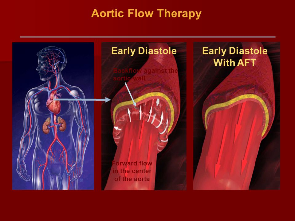 Aortic Flow Therapy Backflow against the aortic wall Forward flow in the center of the aorta Early Diastole With AFT